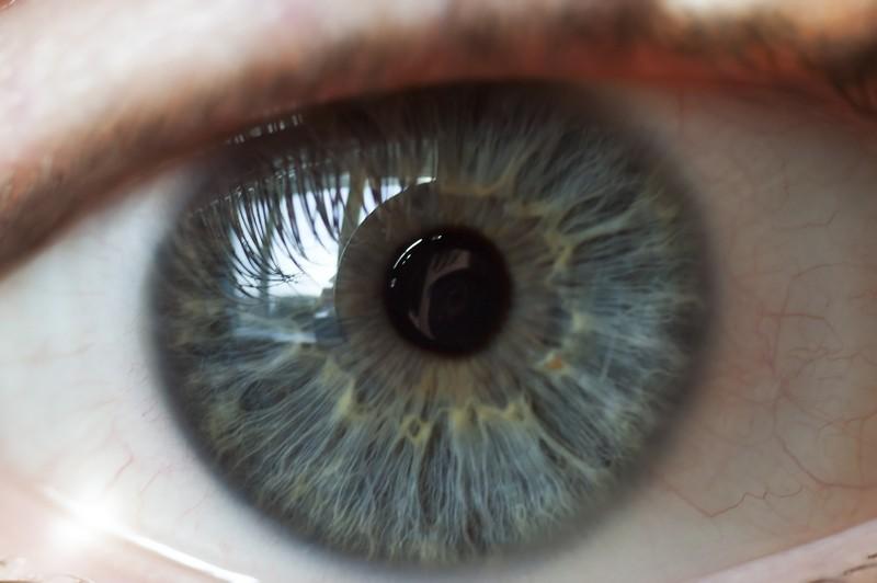 Digital Retina Imaging  Gainesville, GA